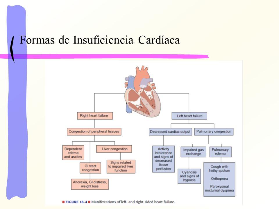 Formas de Insuficiencia Cardíaca