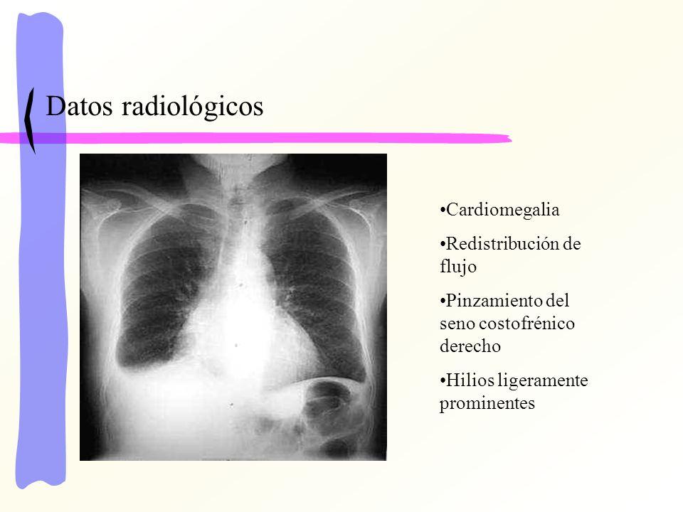 Datos radiológicos Cardiomegalia Redistribución de flujo