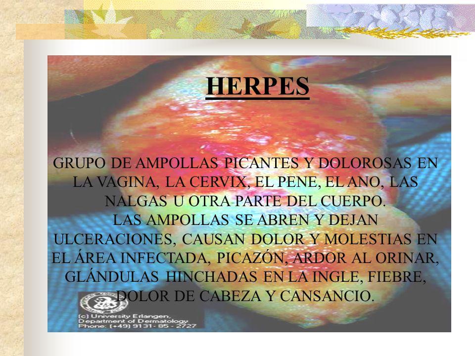 HERPES GRUPO DE AMPOLLAS PICANTES Y DOLOROSAS EN LA VAGINA, LA CERVIX, EL PENE, EL ANO, LAS NALGAS U OTRA PARTE DEL CUERPO.
