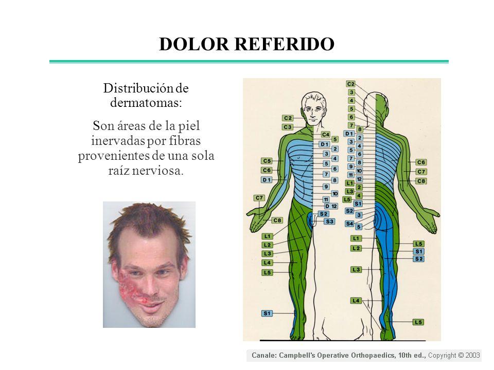 Distribución de dermatomas: