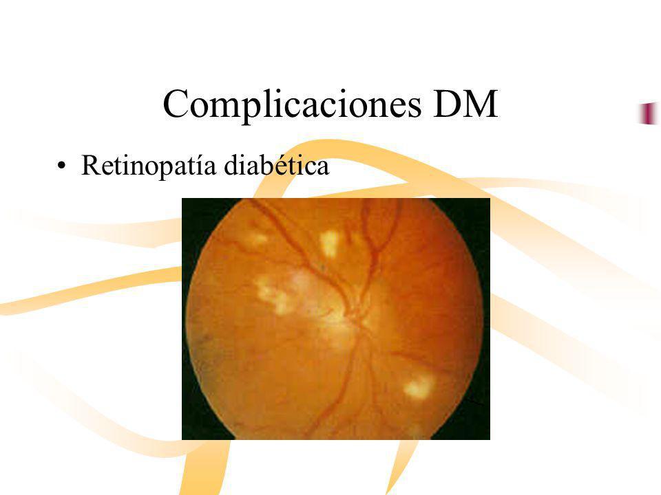 Complicaciones DM Retinopatía diabética