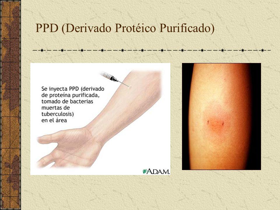PPD (Derivado Protéico Purificado)