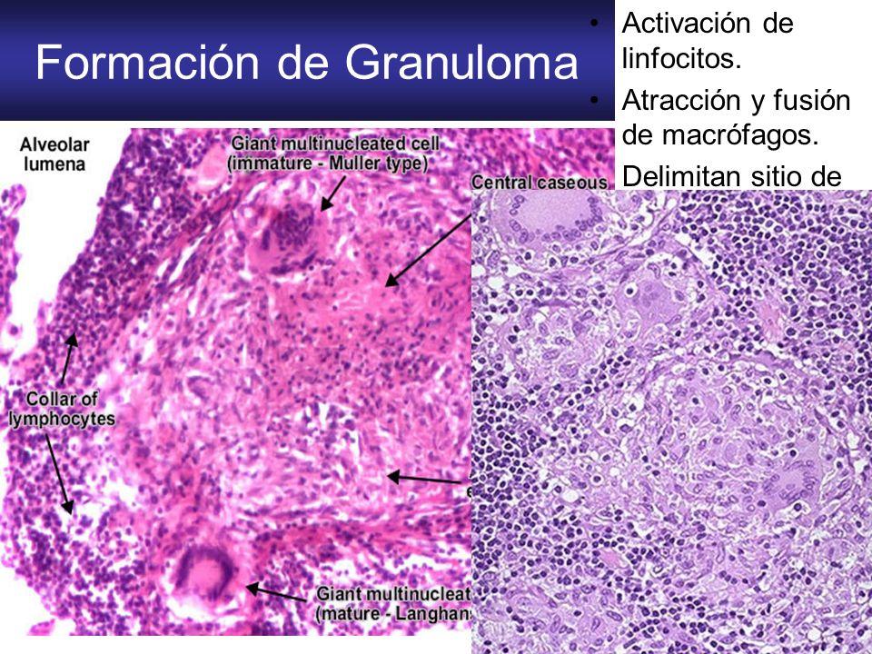 Formación de Granuloma