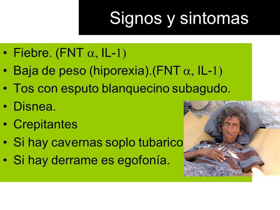 Signos y sintomas Fiebre. (FNT a, IL-1)