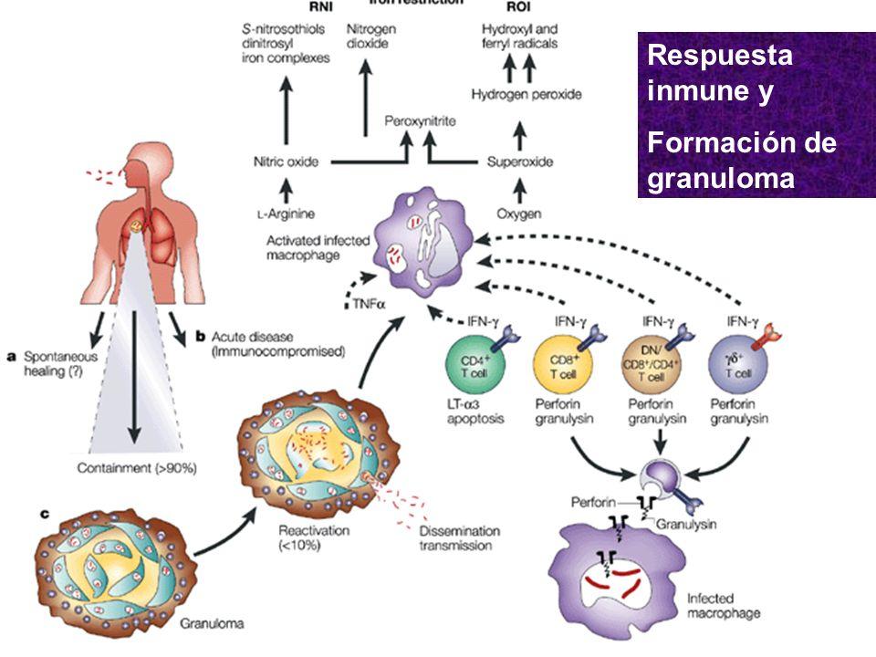 Respuesta inmune y Formación de granuloma