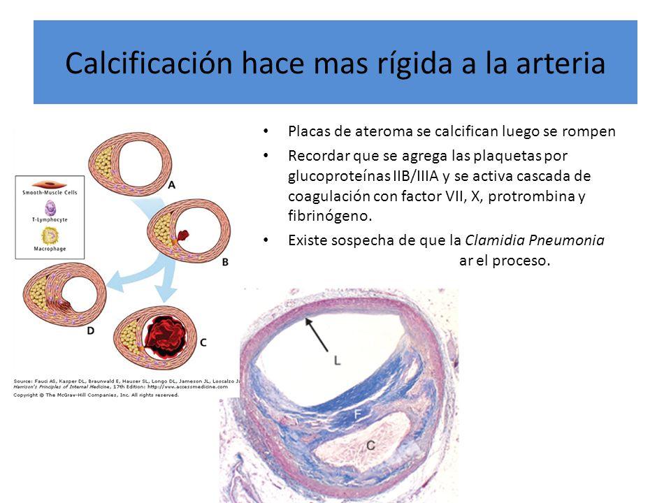 Calcificación hace mas rígida a la arteria