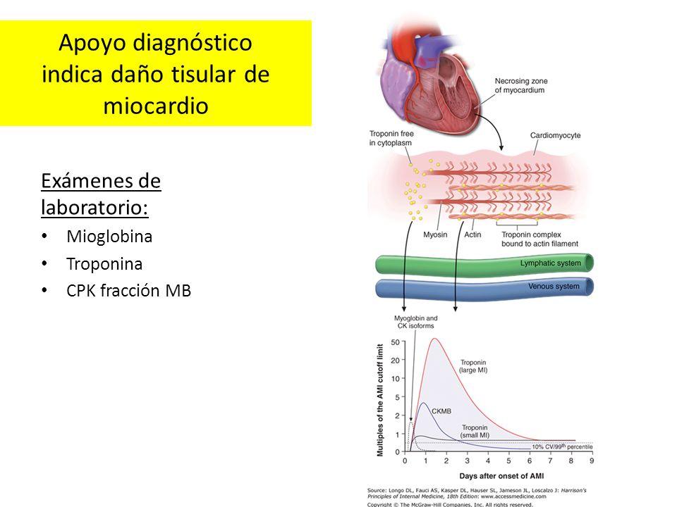 Apoyo diagnóstico indica daño tisular de miocardio