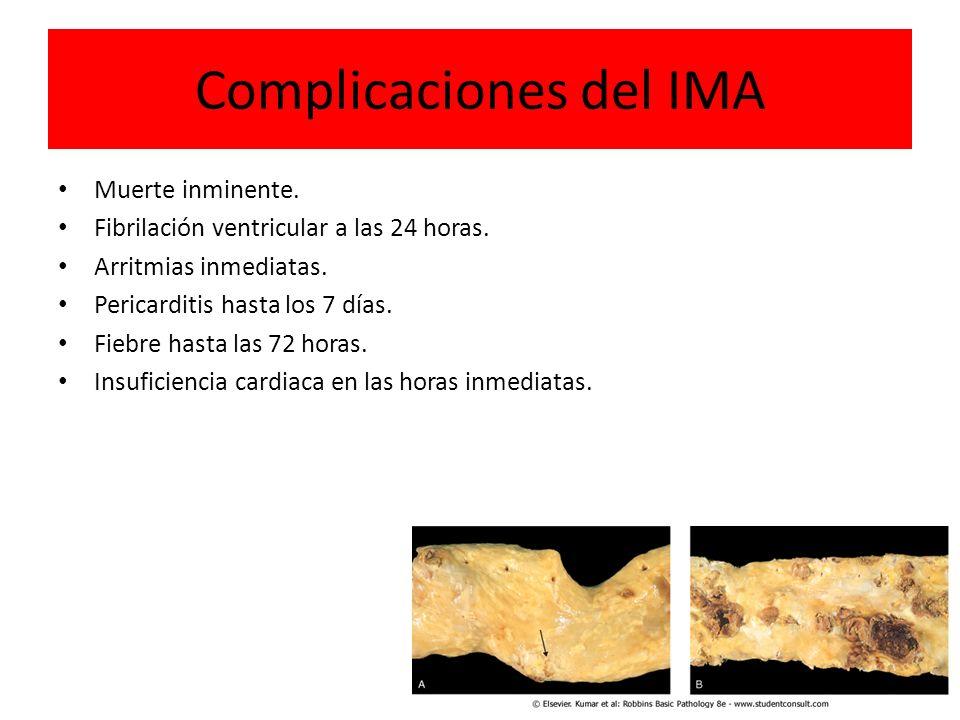 Complicaciones del IMA