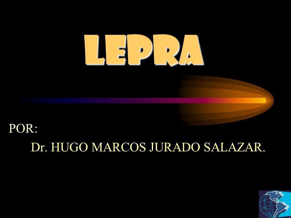 POR: Dr. HUGO MARCOS JURADO SALAZAR.