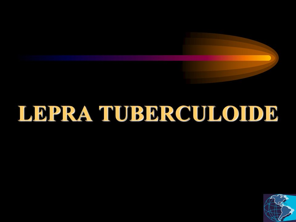 LEPRA TUBERCULOIDE