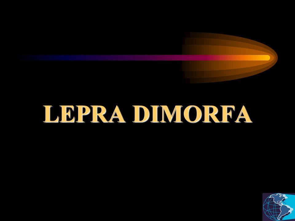 LEPRA DIMORFA