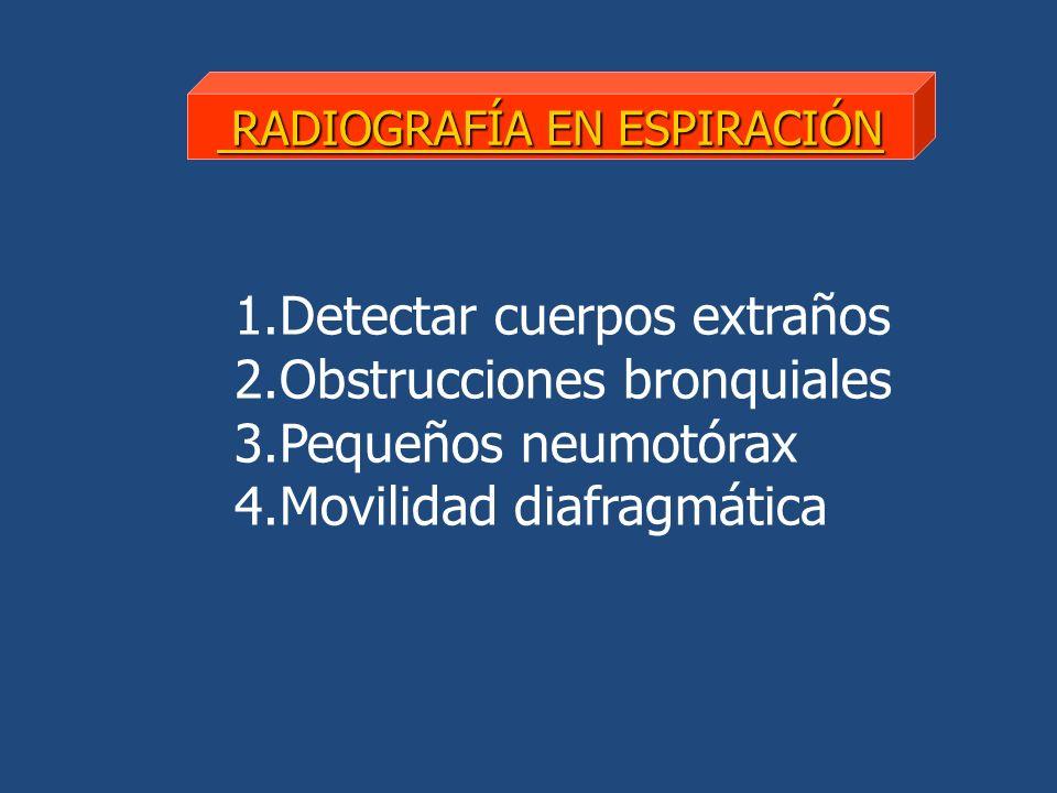 RADIOGRAFÍA EN ESPIRACIÓN