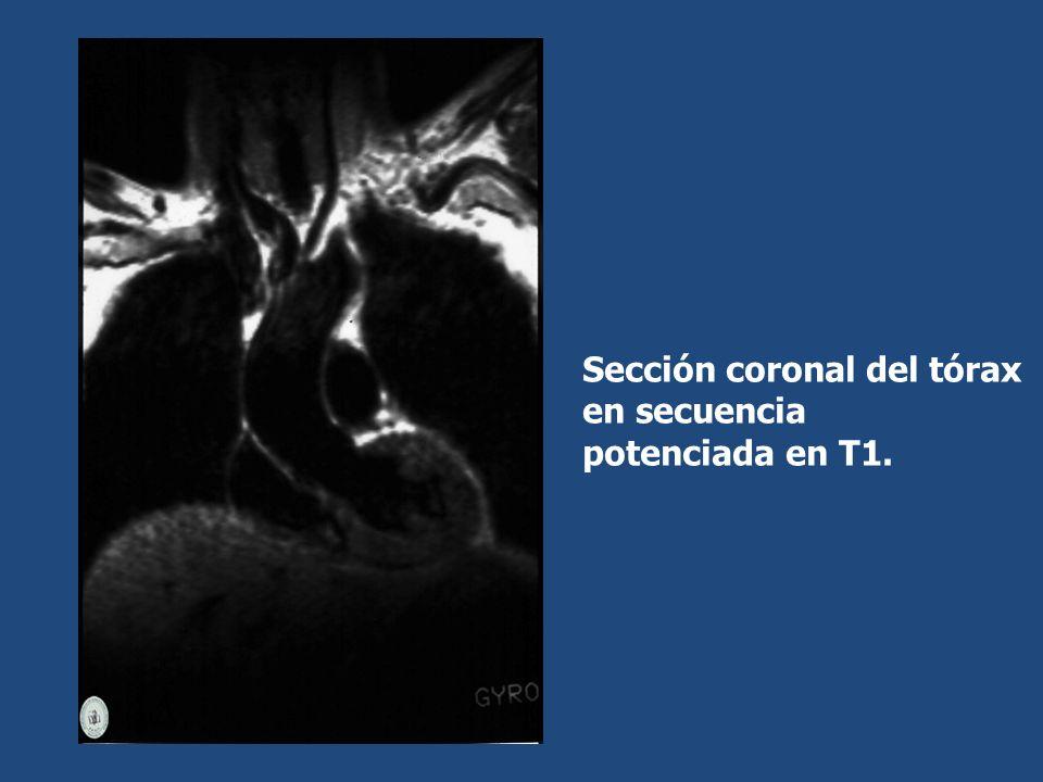 Sección coronal del tórax