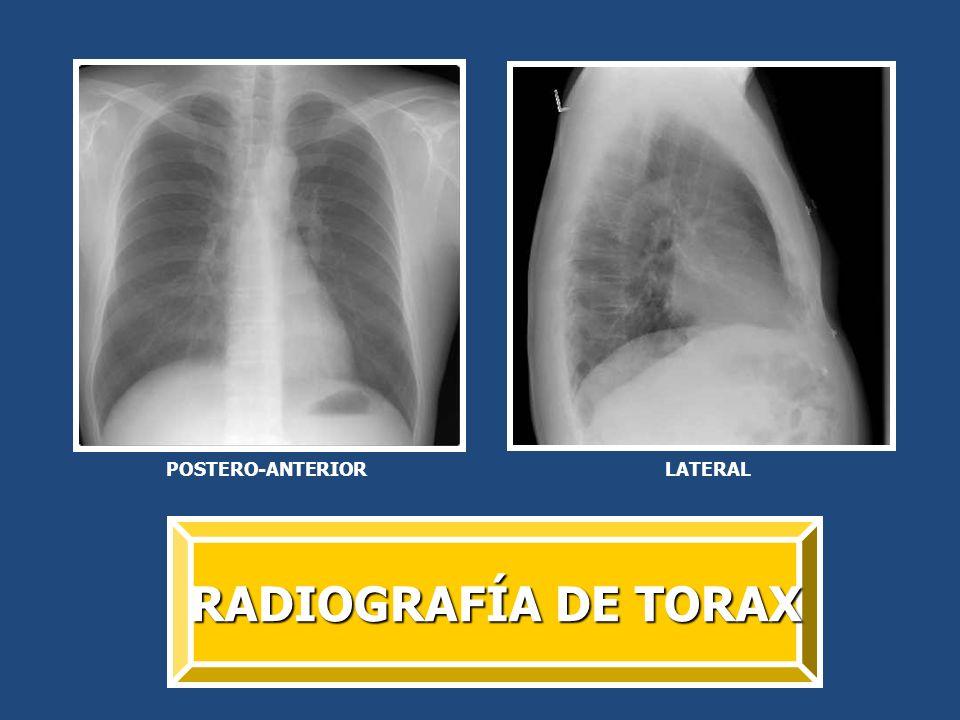 POSTERO-ANTERIOR LATERAL RADIOGRAFÍA DE TORAX