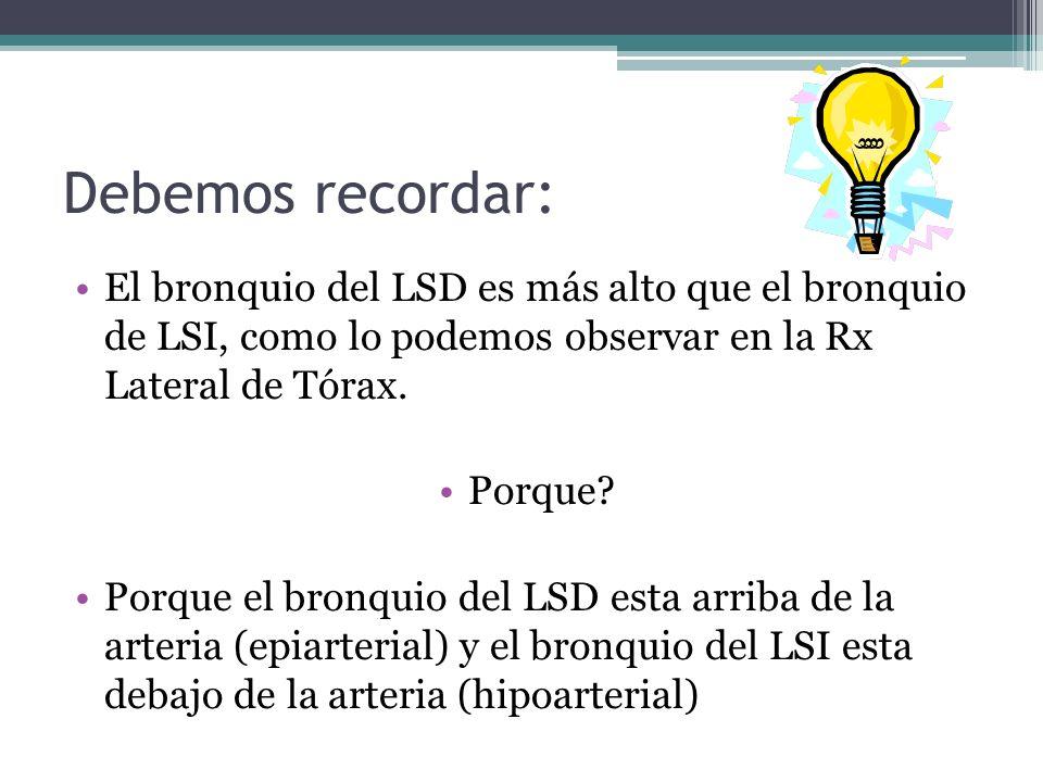Debemos recordar: El bronquio del LSD es más alto que el bronquio de LSI, como lo podemos observar en la Rx Lateral de Tórax.