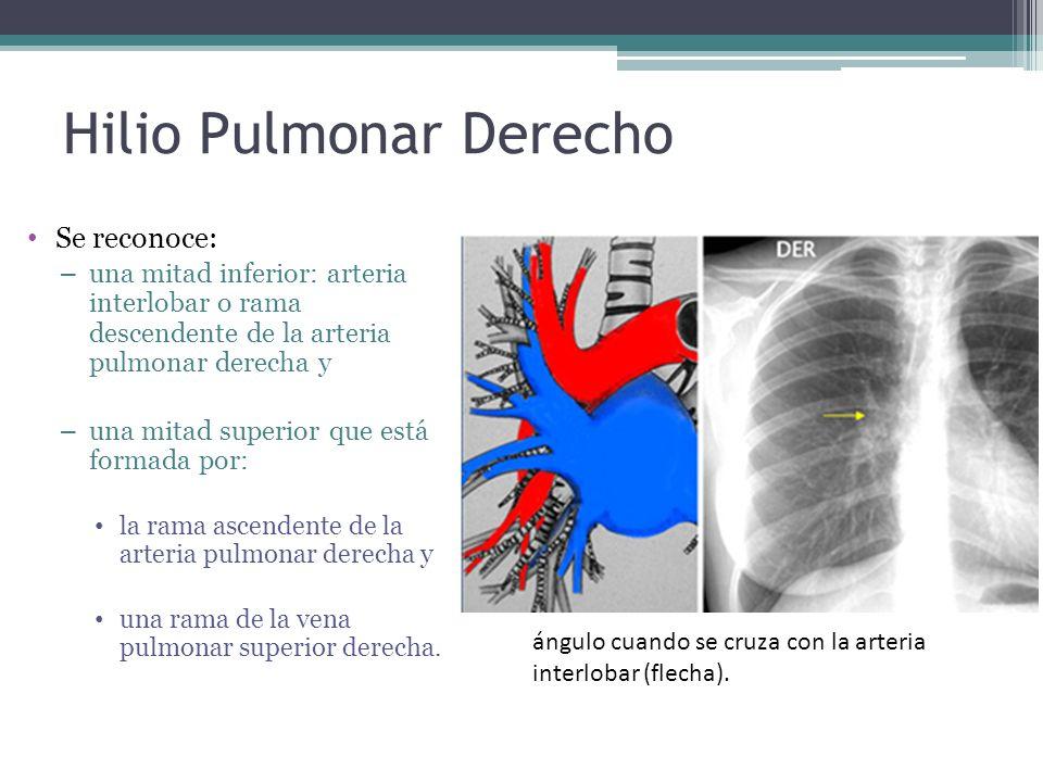 Hilio Pulmonar Derecho