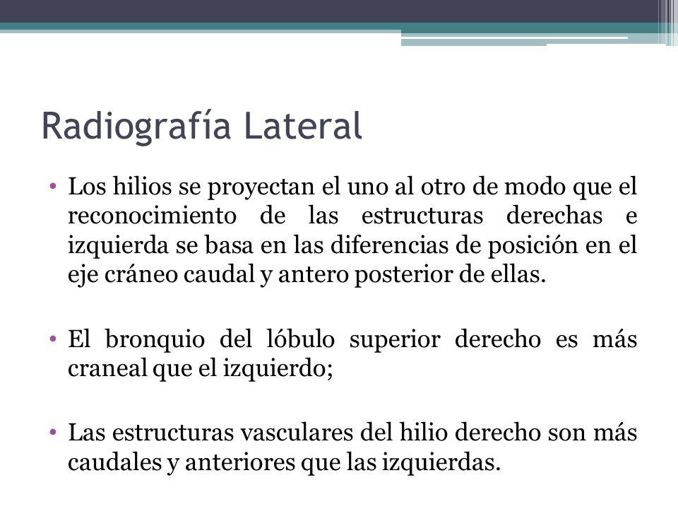 Radiografía Lateral
