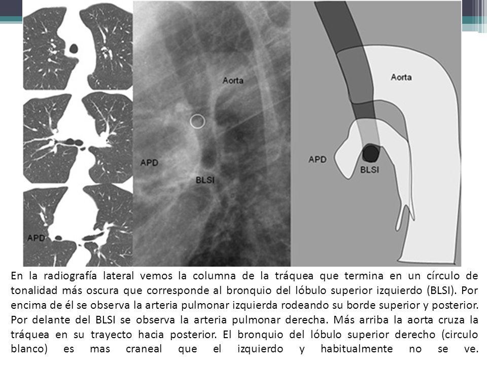 En la radiografía lateral vemos la columna de la tráquea que termina en un círculo de tonalidad más oscura que corresponde al bronquio del lóbulo superior izquierdo (BLSI).