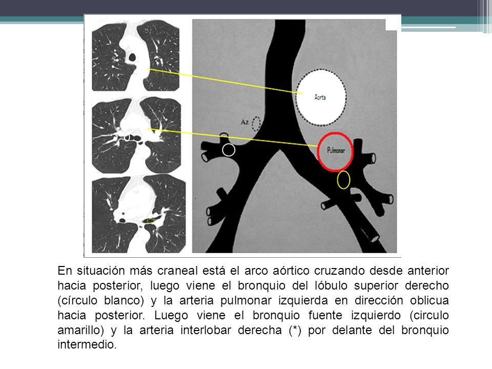 En situación más craneal está el arco aórtico cruzando desde anterior hacia posterior, luego viene el bronquio del lóbulo superior derecho (círculo blanco) y la arteria pulmonar izquierda en dirección oblicua hacia posterior.