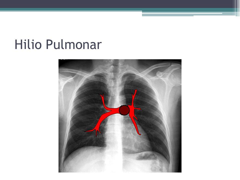 Hilio Pulmonar