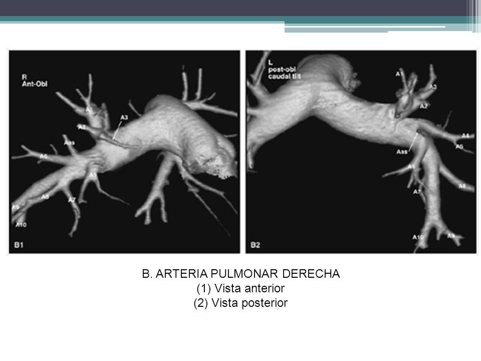 B. ARTERIA PULMONAR DERECHA