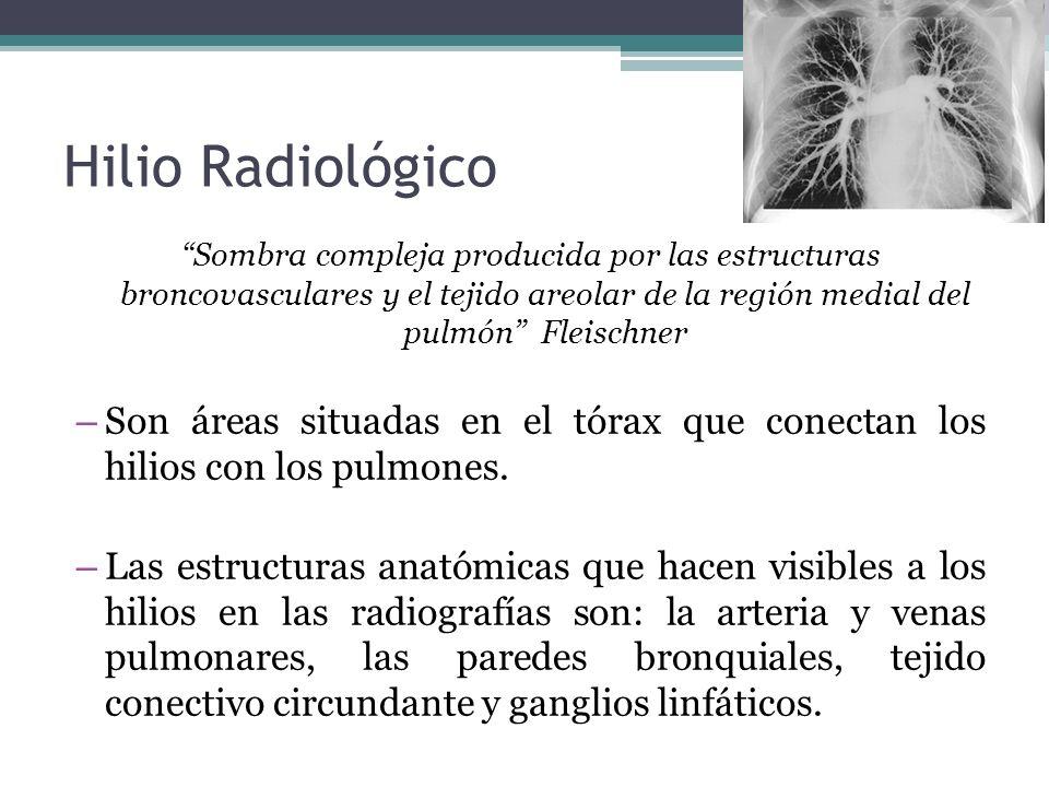 Hilio Radiológico Sombra compleja producida por las estructuras broncovasculares y el tejido areolar de la región medial del pulmón Fleischner.