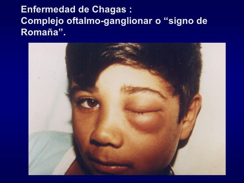 Enfermedad de Chagas : Complejo oftalmo-ganglionar o signo de Romaña .