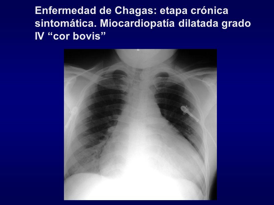 Enfermedad de Chagas: etapa crónica sintomática