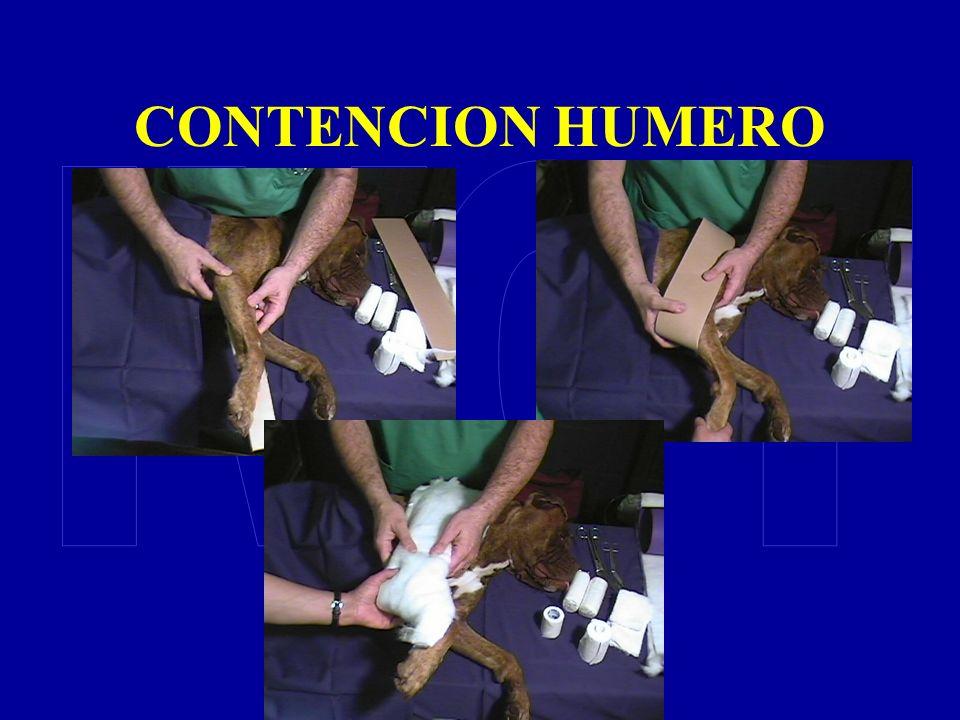 CONTENCION HUMERO IVOT