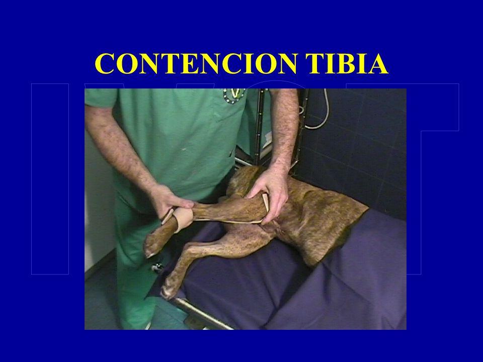 CONTENCION TIBIA IVOT