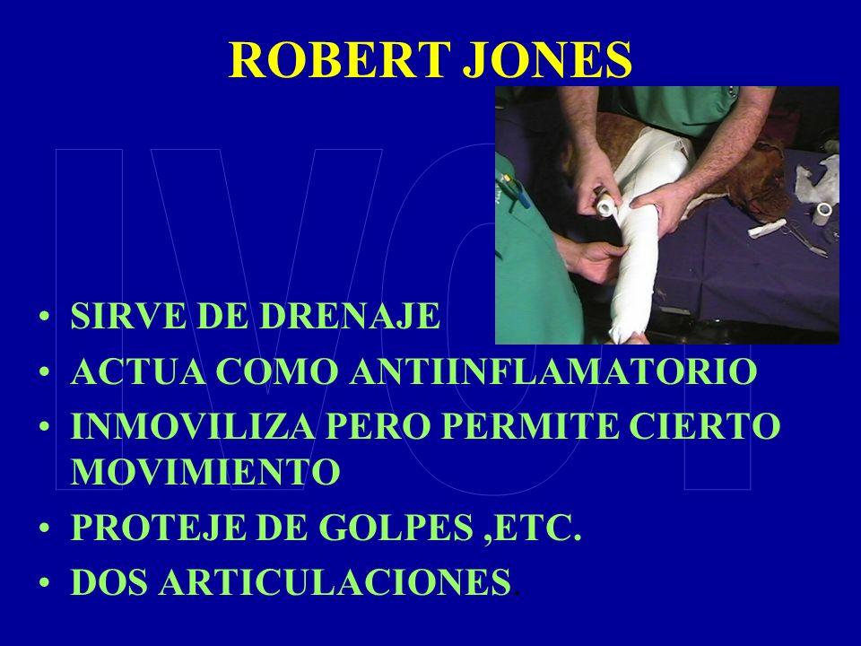 ROBERT JONES IVOT SIRVE DE DRENAJE ACTUA COMO ANTIINFLAMATORIO