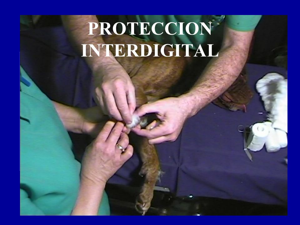 PROTECCION INTERDIGITAL