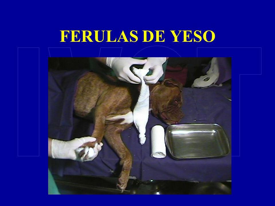 FERULAS DE YESO IVOT