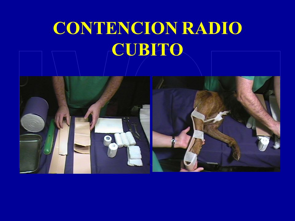 CONTENCION RADIO CUBITO