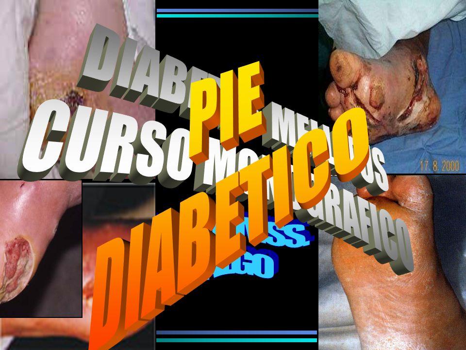PIE DIABETICO DIABETES MELLITUS CURSO MONOGRAFICO HGZ N°1, IMSS. HIDALGO
