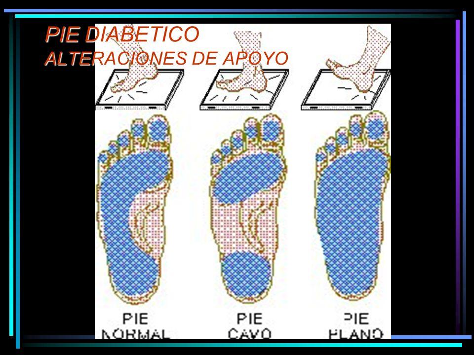 PIE DIABETICO ALTERACIONES DE APOYO