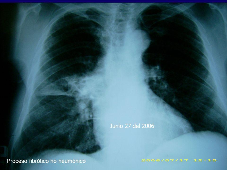 Junio 27 del 2006 Proceso fibrótico no neumónico
