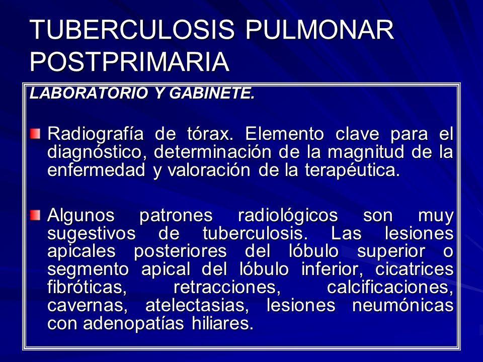 TUBERCULOSIS PULMONAR POSTPRIMARIA