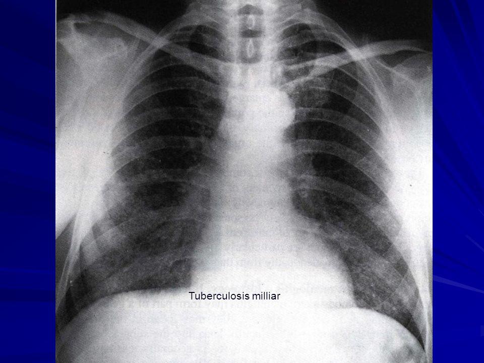 Tuberculosis milliar
