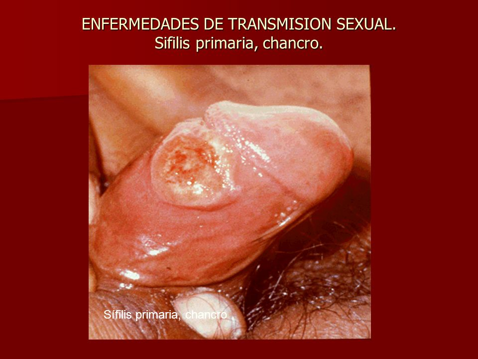 ENFERMEDADES DE TRANSMISION SEXUAL. Sifilis primaria, chancro.