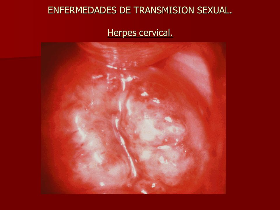 ENFERMEDADES DE TRANSMISION SEXUAL. Herpes cervical.
