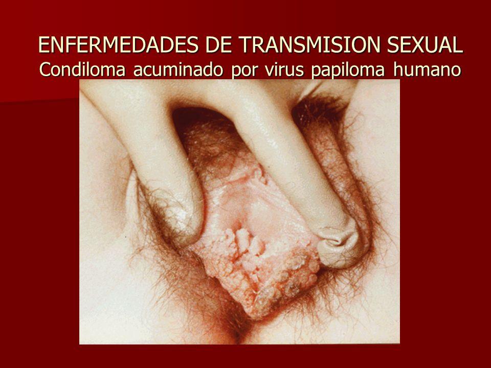 ENFERMEDADES DE TRANSMISION SEXUAL Condiloma acuminado por virus papiloma humano