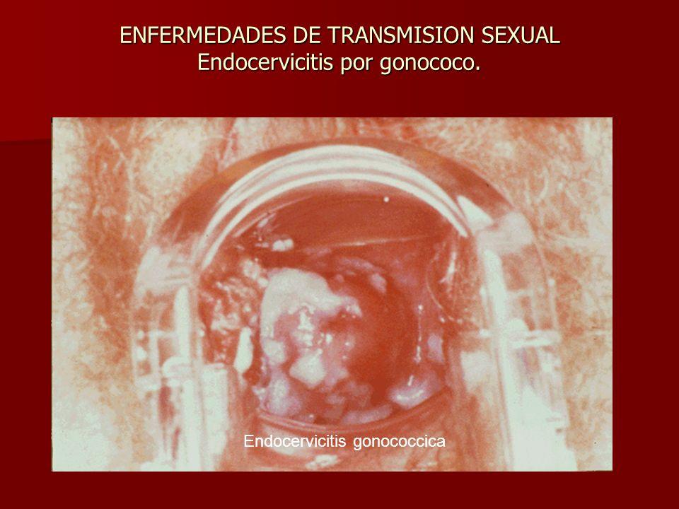 ENFERMEDADES DE TRANSMISION SEXUAL Endocervicitis por gonococo.