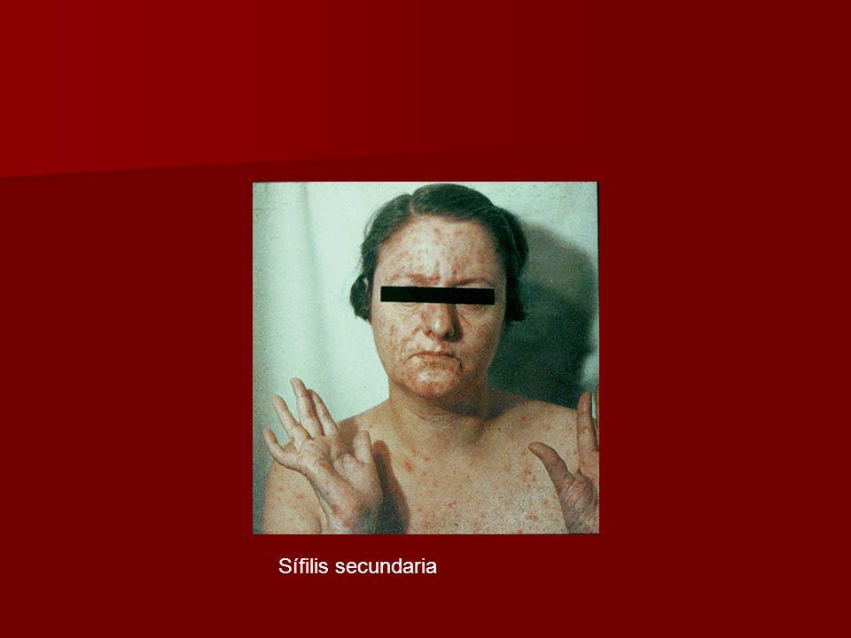 Sífilis secundaria