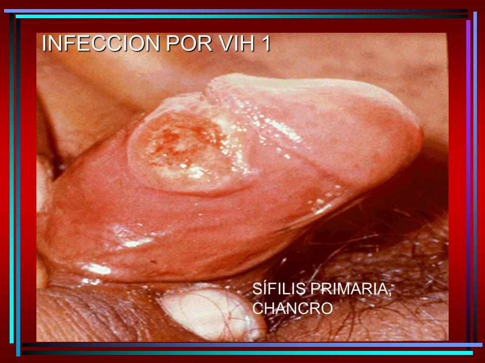 INFECCION POR VIH 1 SÍFILIS PRIMARIA, CHANCRO