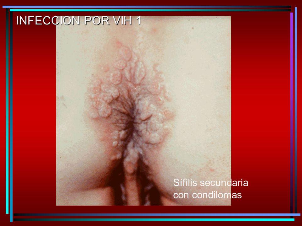 INFECCION POR VIH 1 Sífilis secundaria con condilomas