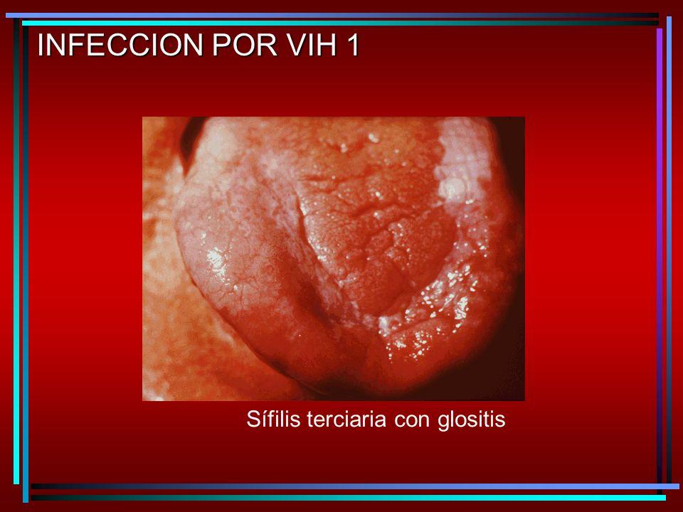 INFECCION POR VIH 1 Sífilis terciaria con glositis