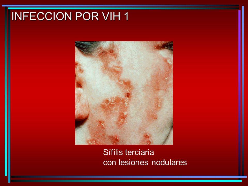 INFECCION POR VIH 1 Sífilis terciaria con lesiones nodulares