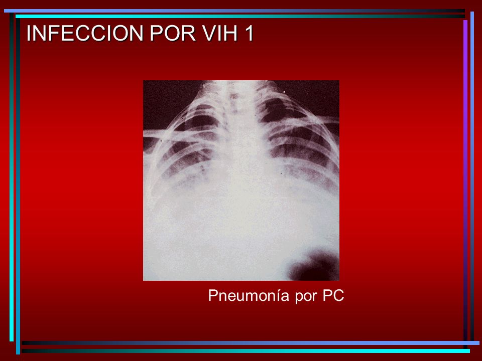 INFECCION POR VIH 1 Pneumonía por PC