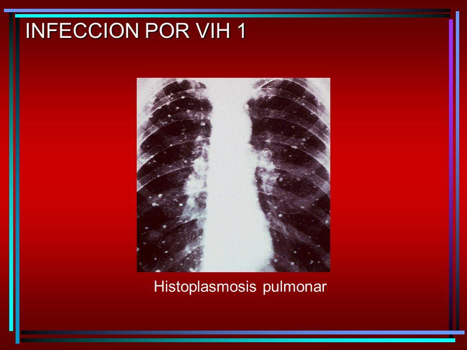 INFECCION POR VIH 1 Histoplasmosis pulmonar